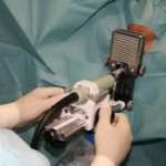 Брахитерапия фото